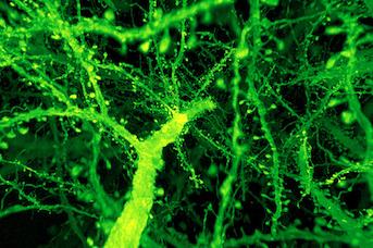 Combining Expansion Microscopy and Lattice Light-Sheet Microscopy image